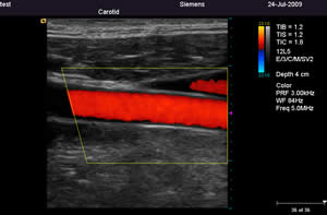 Siemens P50 Color Doppler Carotid image