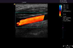 Acuson P50 Color Doppler portable Ultrasound
